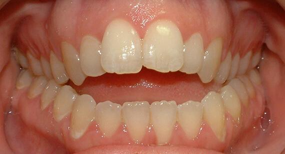 неправильный прикус зубов у детей