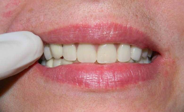 Съёмные зубные протезы